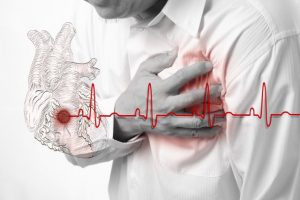 Heart Attack and heart beats cardiogram background